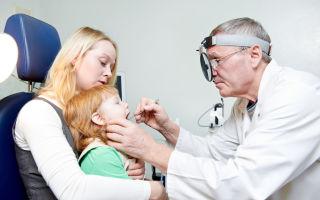 В каких случаях удаляют гланды: показания к проведению тонзилэктомии, этапы и последствия операции