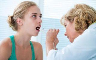 Формы тонзиллита, симптомы, особенности лечения