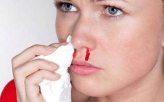 Почему идет кровь из носа: причины