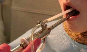 Способы промывания лакун миндалин, показания к их проведению