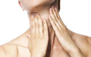Диагноз стеноз гортани — что это такое