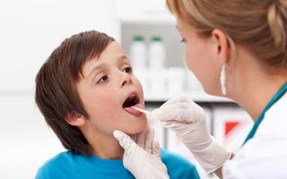 Как лечить гланды взрослых и детей