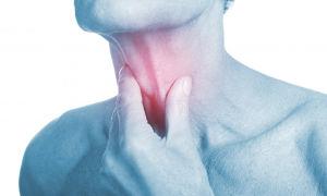 Как возникает вирусный фарингит, его симптомы и лечение