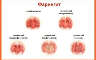 Фарингит: лечение в домашних условиях медикаментозными и народными способами
