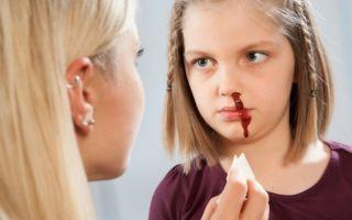 На что указывает кровь из носа у ребенка: причины
