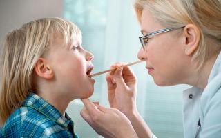 Как лечить аденоиды у детей