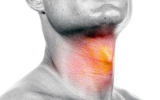Как быстро вылечить если першит в горле