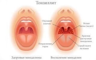 Применение антибиотиков при тонзиллите