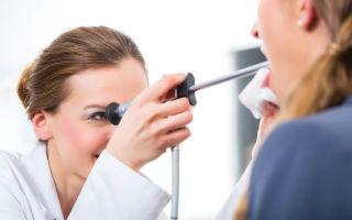 Причины появления гноя в горле, способы его устранения