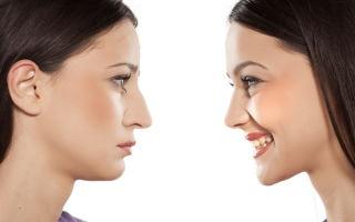 Операция по исправлению перегородки носа, кому она необходима?