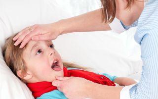 Причины появления белого налета в горле