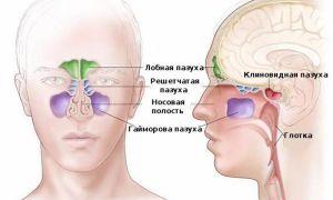 Виды заболеваний придаточных пазух носа