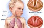 Диагноз ларингит: порядок лечения у детей