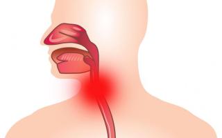 Симптомы и лечение ларингита