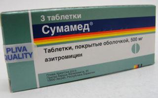 Таблетки при ангине: какие выбрать