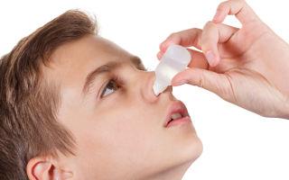 Вазомоторный ринит — успешное лечение