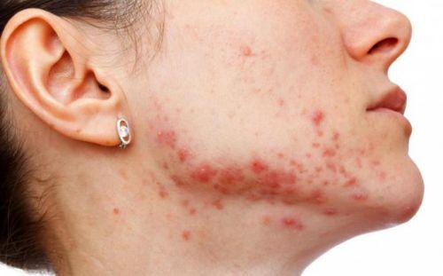 Золотистый стафилококк в носу: симптомы и лечение