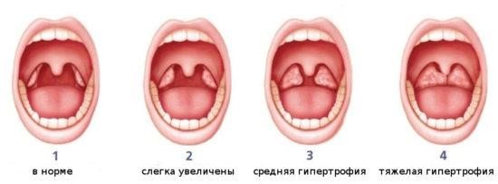 степени разрастания аденоидов