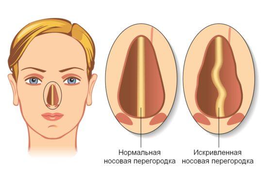 Искревленная носовая перегородка