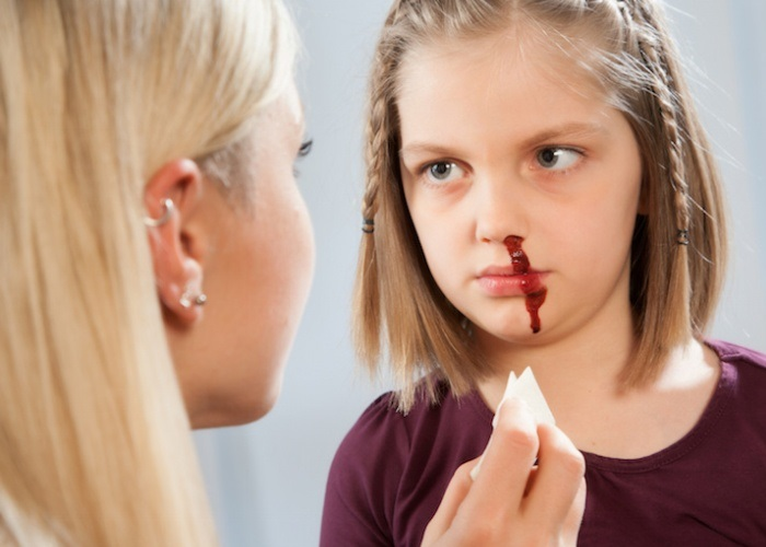 У ребенка часто идет кровь из носа