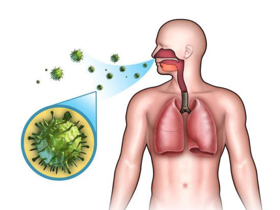 Лечение ларинготрахеитов