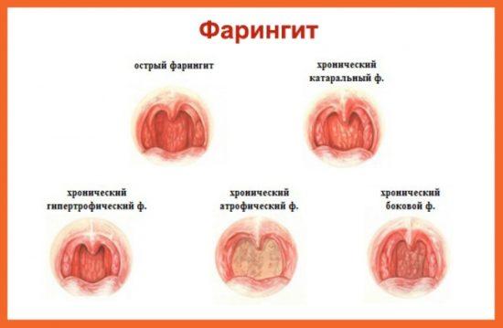 как лечить фарингит