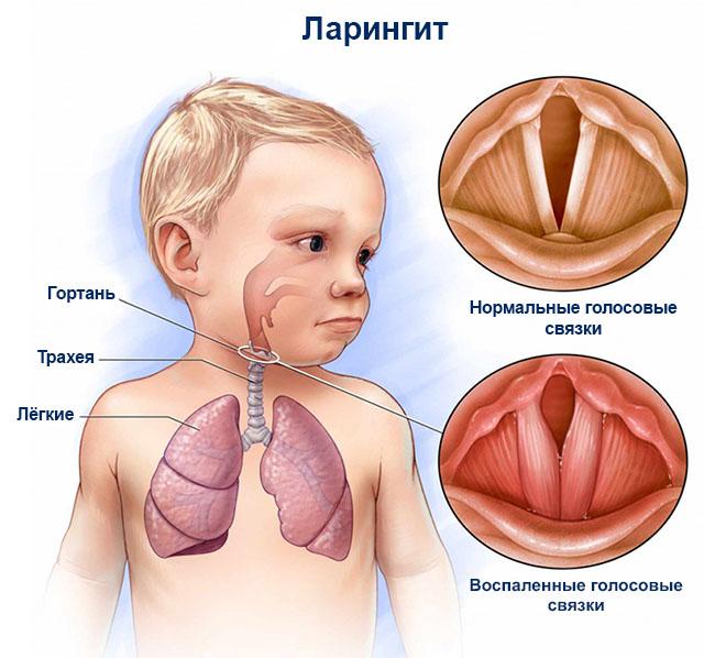 болезни горла и гортани фото и симптомы у детей