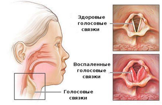 воспаление гортани и трахеи