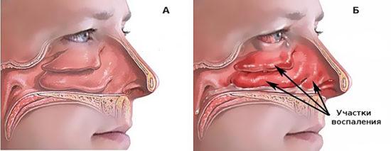 причины отека слизистой носа