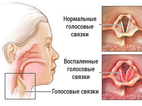 лающий кашель при ларингите
