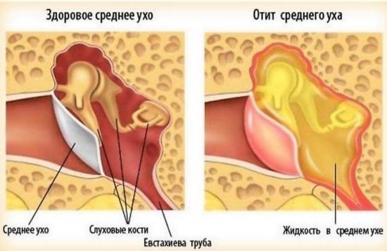 виды отита у грудничков