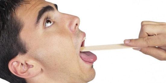 сильные боли в горле